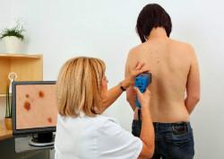 Лечение меланомы в Израиле